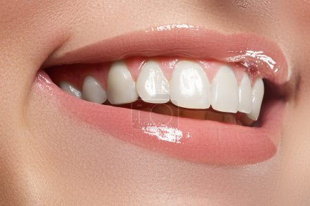 Perfect smile. Beautiful natural full lips and white teeth. Teeth whitening._高清图片_邑石网