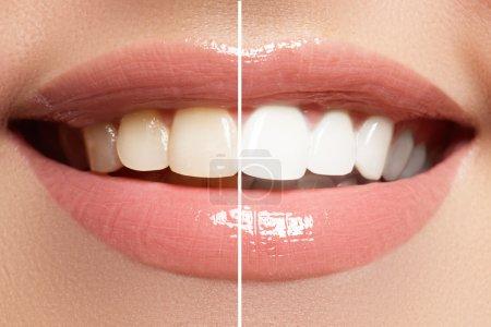 之前和之后漂白的完美笑容。牙科护理和美白牙齿_高清图片_邑石网