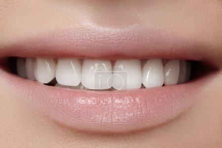 与美白牙齿的美丽笑容。牙科的照片。宏的完美女性的嘴里,lipscare 些调料的特写_高清图片_邑石网